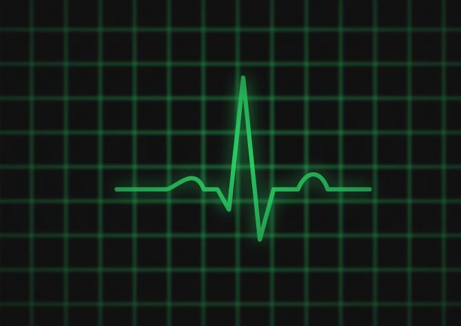 svg代码模仿脑电波图表动画特效JavaScript代码